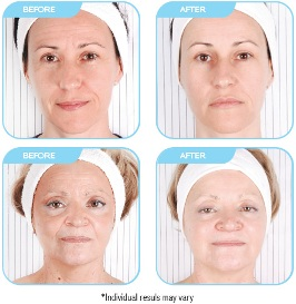 Before & After of Smooth Skin System™