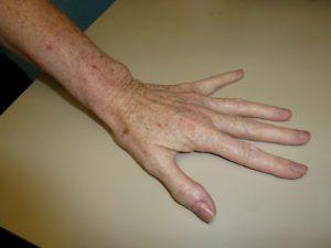 Age spots, sun damaged skin