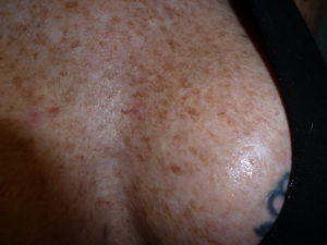 Chest with pigmentation problems for years of sun damage.