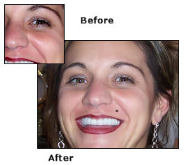Permanent cosmetics photo album tampa bay laser hair removal for Beauty mark tattoo