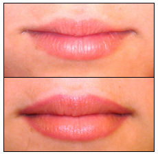 This is when you are seeking just clarity for your lips and apply the color you had when you were a young teen.