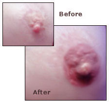 Nipple Reconstruction, nipple pigmentation, areola tattooing
